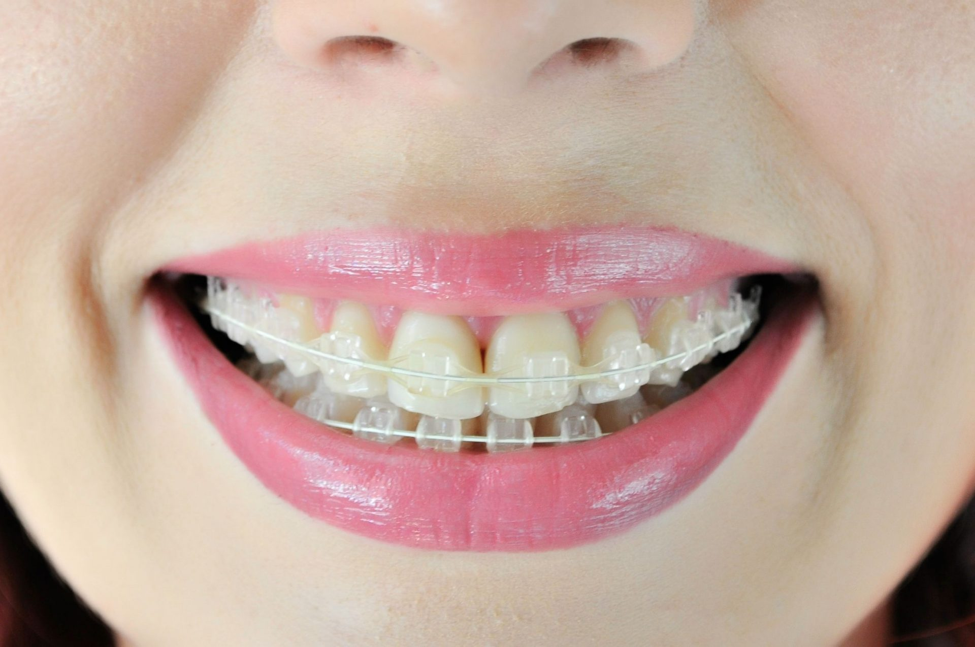 clear ceramic braces Central Missouri Orthodontics