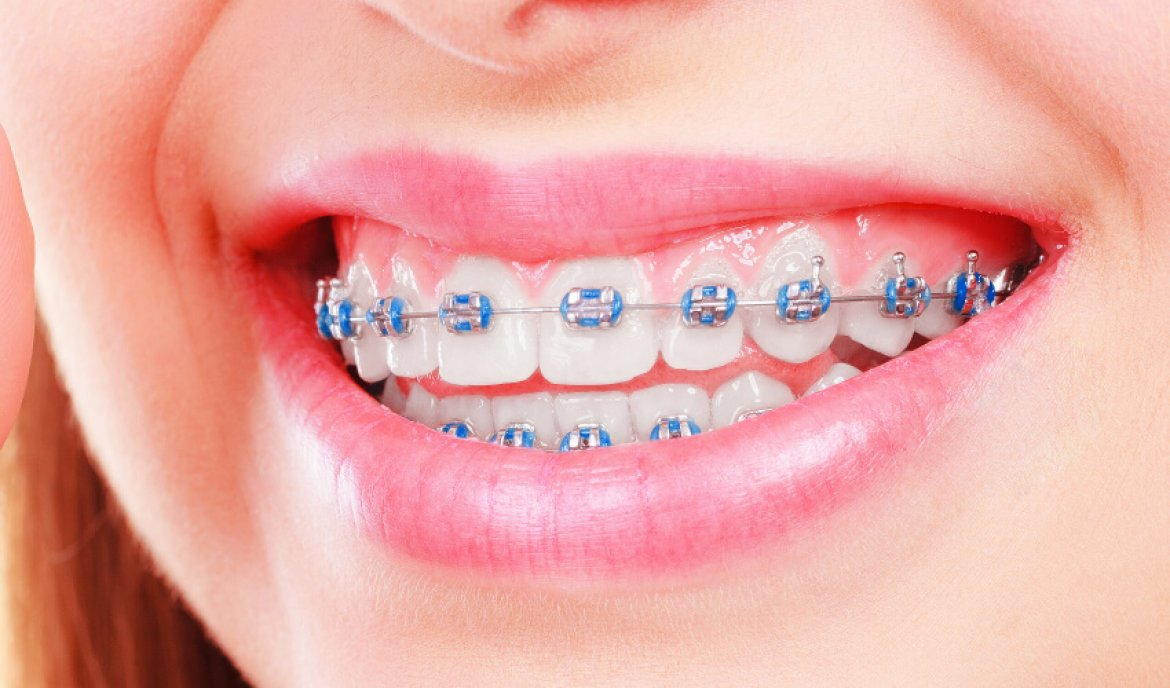 traditional braces Central Missouri Orthodontics