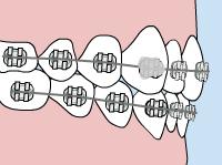 central missouri orthodontics loose-bracket