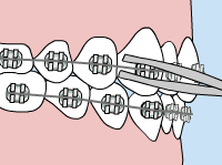 orthodontic comfort loose braces wires