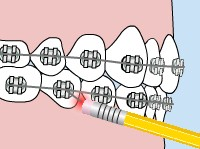 central missouri orthodontics poking wire